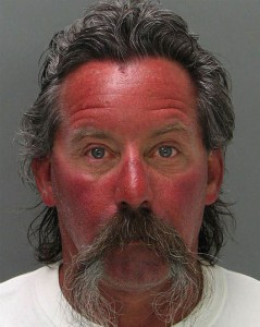 Amazing Mugshots of Normal People - Sunburn