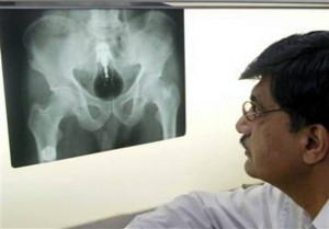 Xtreme X-rays - Light Bulb