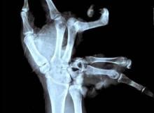 Xtreme X-rays - Broken Hand